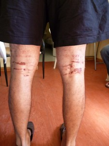 injuries from the clothes after 9 hours in the sea on Wahids body